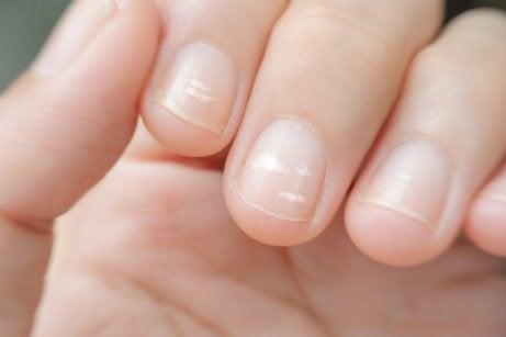Strepen op de vingernagels door een tekort aan zink