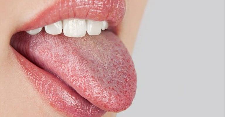 Beginstadium van diabetes: een droge mond en dorst