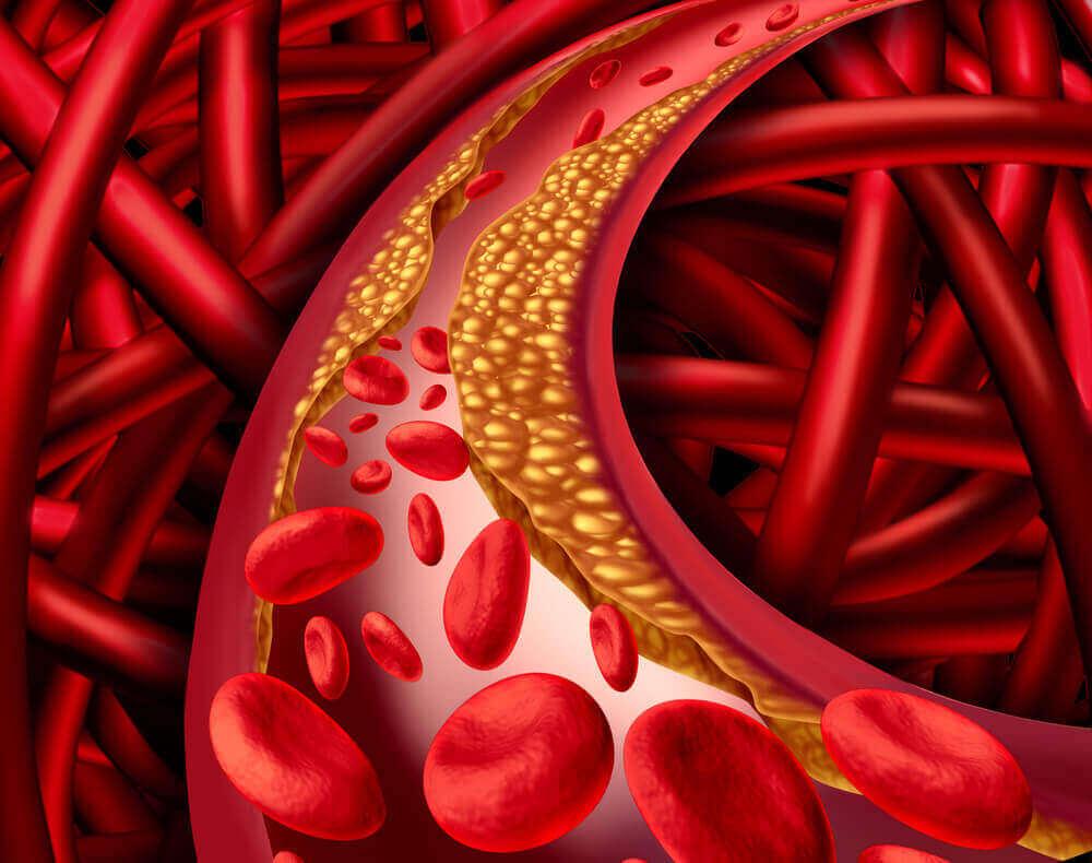Cholesterol in de aderen