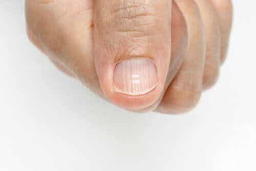 Strepen op de vingernagels zijn signalen van gezondheidsproblemen