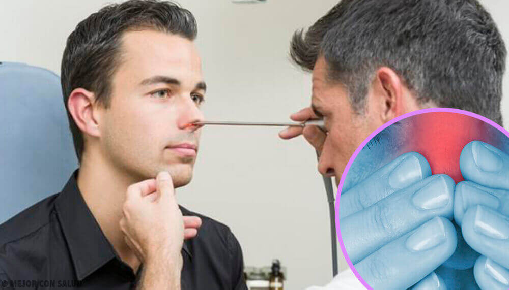 Man die een neusonderzoek laat doen