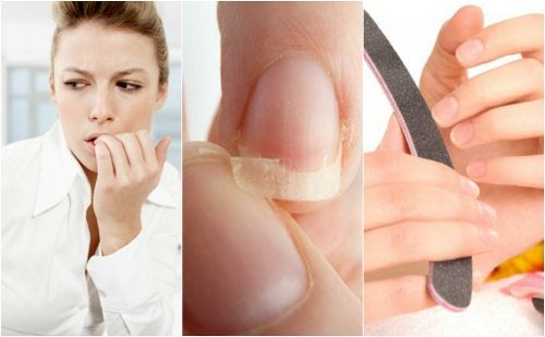 8 redenen waarom je nagels broos zijn