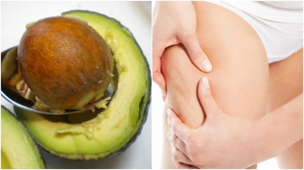 Hoe kun je een avocadopit gebruiken om cellulitis te behandelen?
