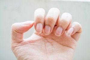 Natuurlijke behandelingen voor brekende nagels