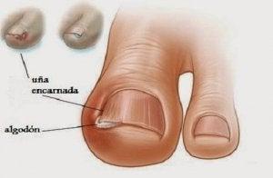 Natuurlijke behandelingen voor ingroeiende nagels