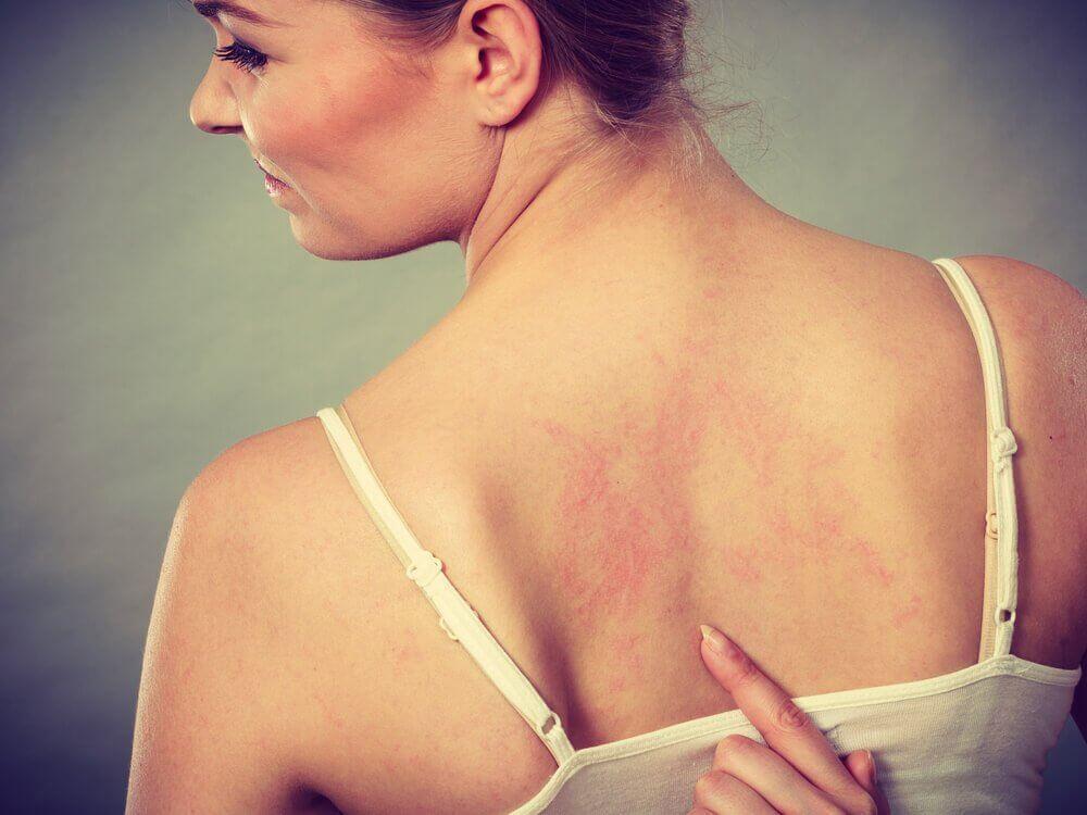Signalen van bloedklonters, rode lijnen op de huid