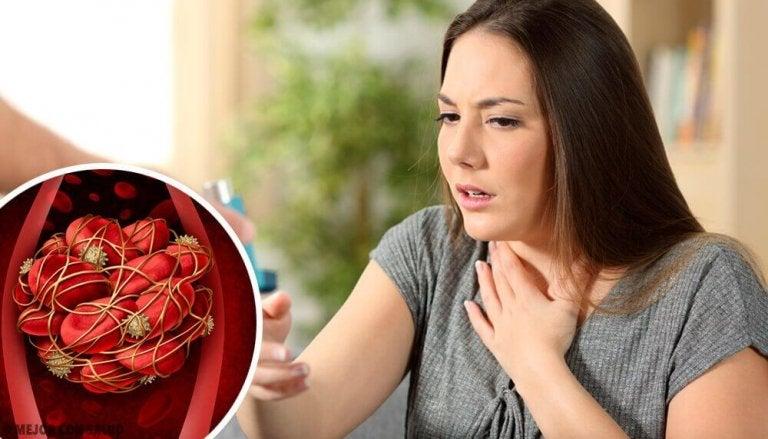 Acht signalen van bloedklonters waarop je moet letten