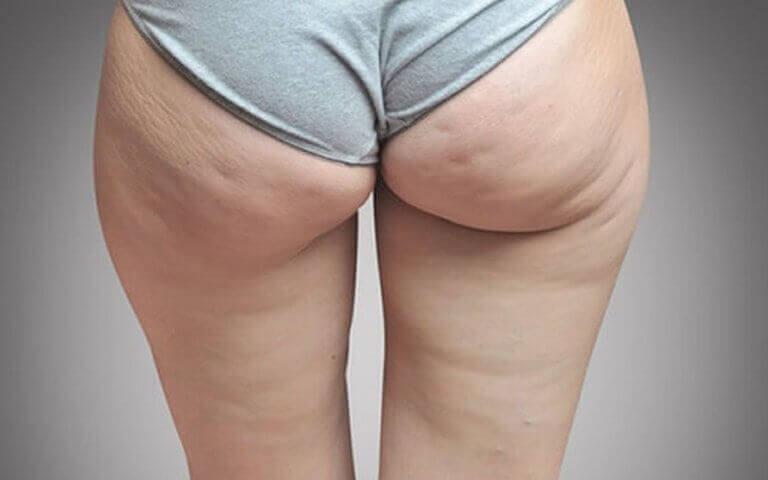 Vrouw met cellulitis