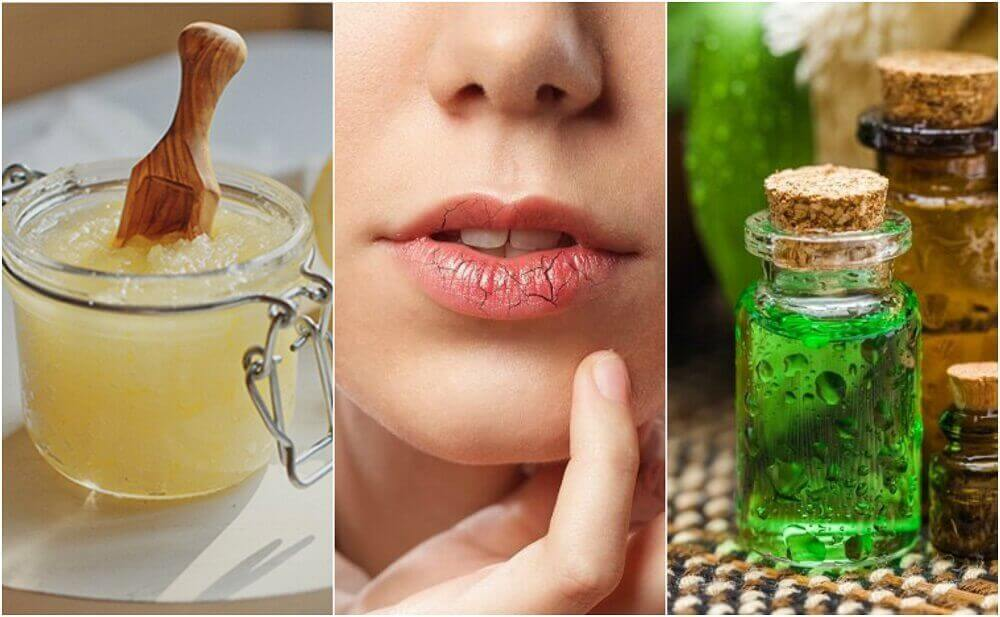 Zo kun je droge lippen voorkomen en behandelen