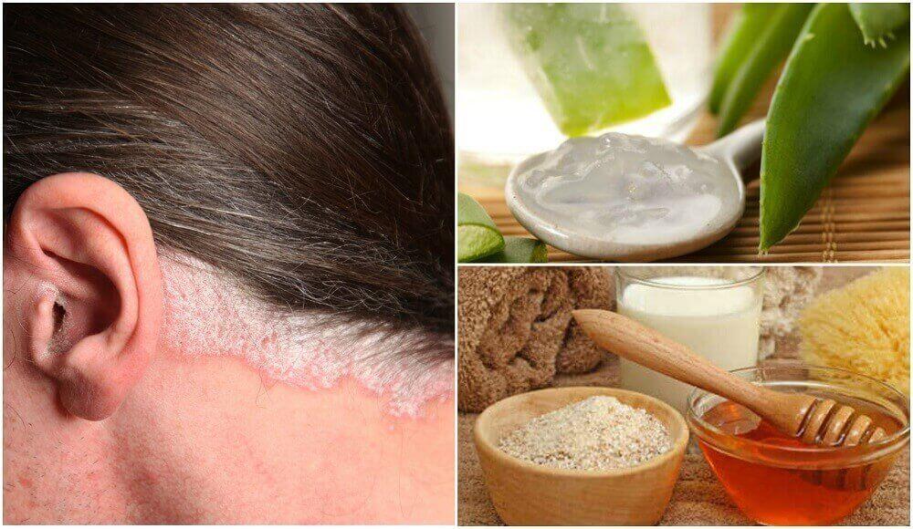 5 huismiddeltjes voor psoriasis van de hoofdhuid