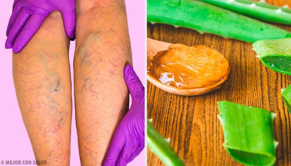Met een remedie van aloëvera kan je spataderen genezen