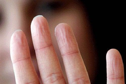 Ovematig yweten en de handen