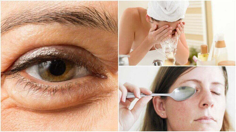 Op natuurlijke wijze wallen onder je ogen verminderen