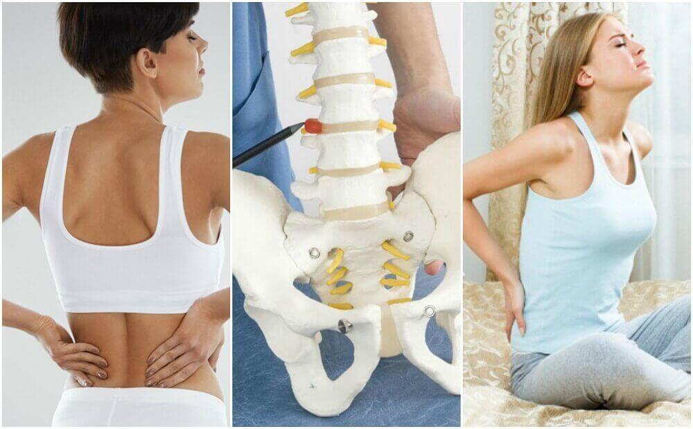 Acht medische oorzaken van rugpijn