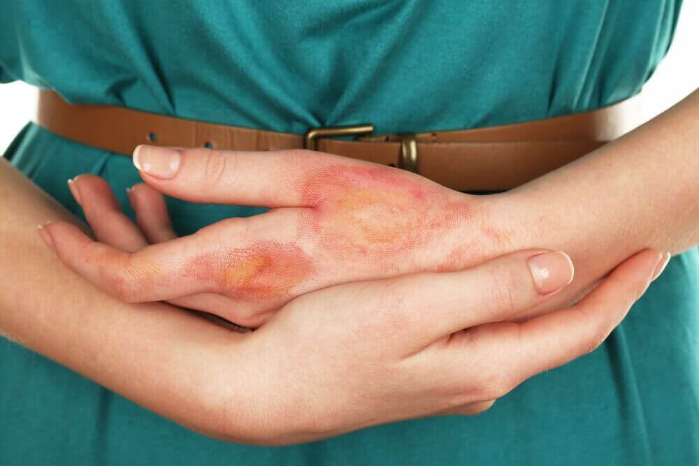 Hand met brandwonden