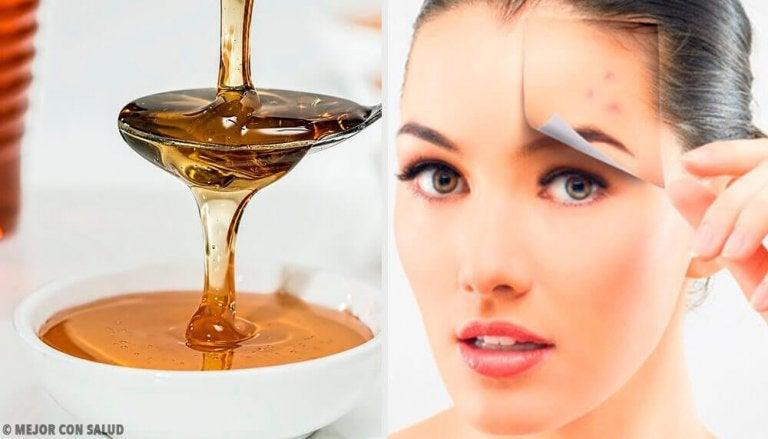 Vier natuurlijke recepten voor een gezonde huid