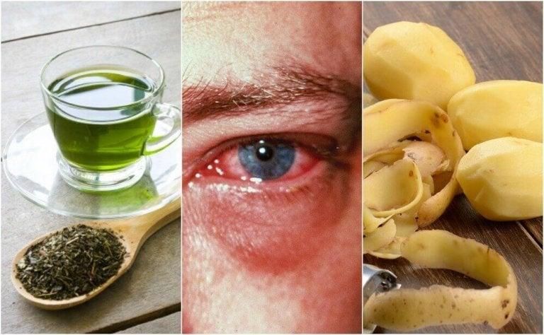 De 8 beste huismiddeltjes tegen een oogontsteking