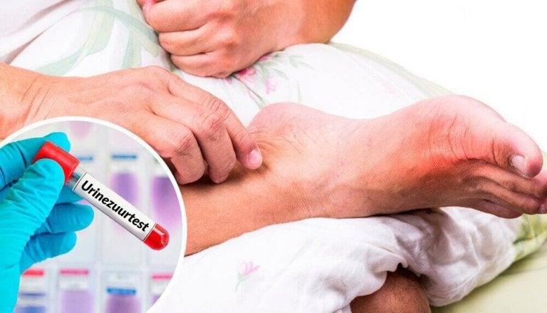5 veel voorkomende oorzaken van een hoog gehalte urinezuur