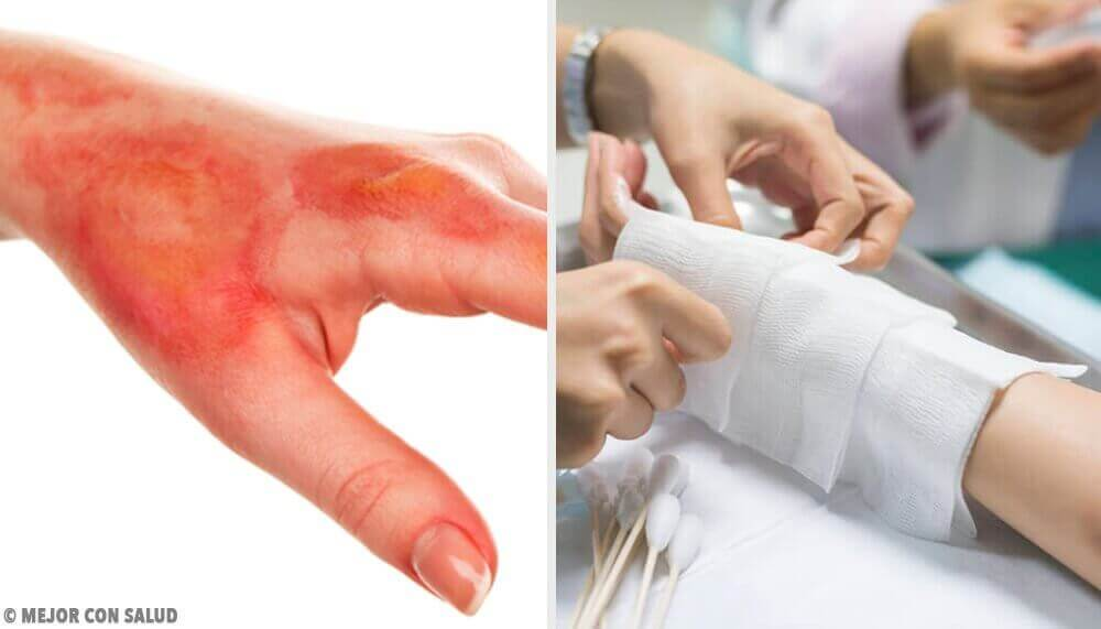 Hoe moet je brandwonden behandelen?