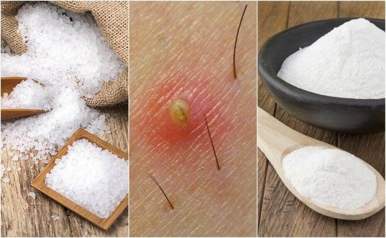 5 natuurlijke oplossingen voor ingegroeide haartjes