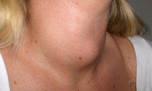 Vroege tekenen van keelkanker: zwelling in de nek
