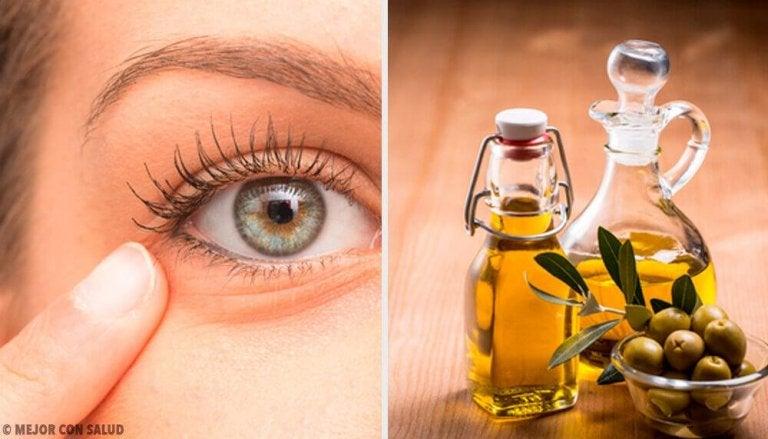 6 natuurlijke remedies voor conjunctivitis