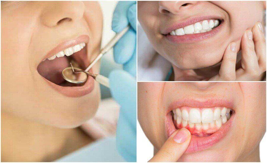 7 symptomen die op een tandheelkundige infectie kunnen duiden