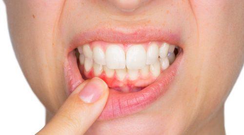 symptomen die op een tandheelkundige infectie kunnen duiden