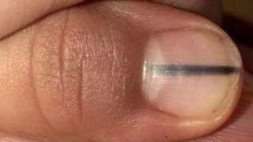 Hoe een zwarte lijn op je nagel een teken van kanker kan zijn