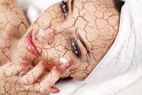 Peelings helpen tegen droge huid