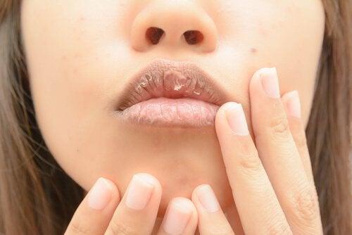 Een droge mond kan veroorzaakt worden door een tekort aan water