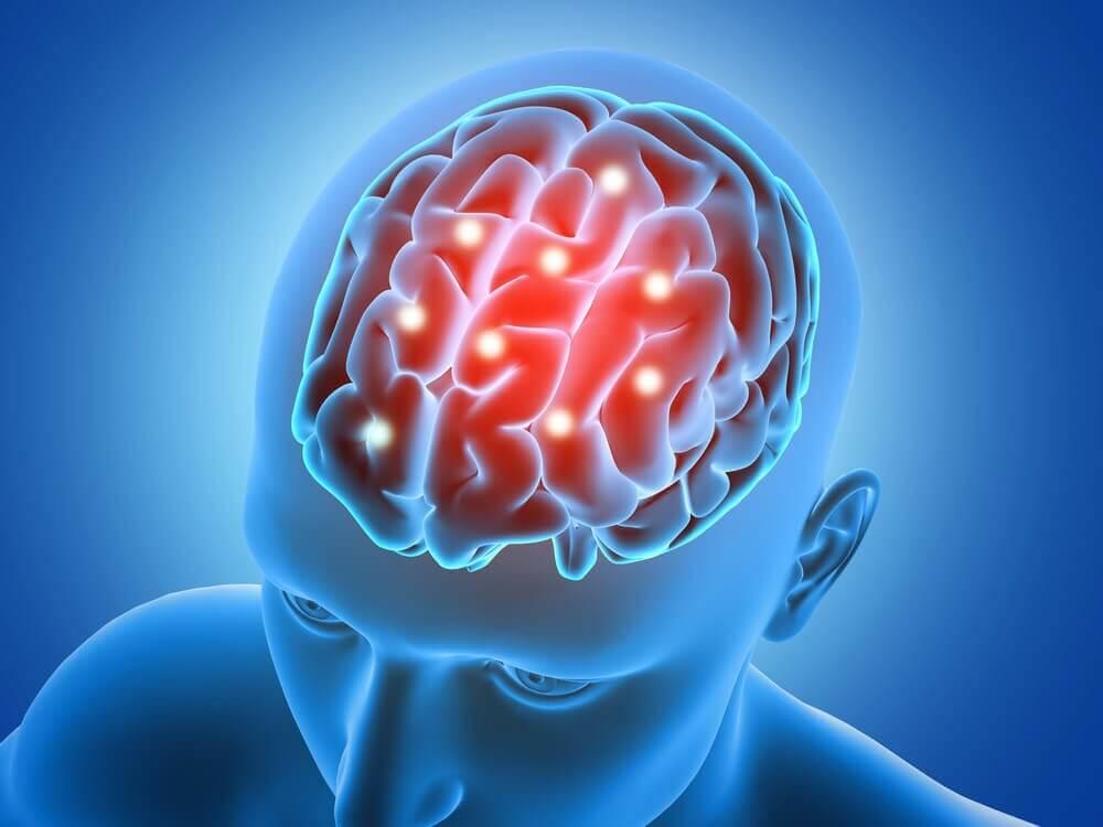 Bloedstroming van de hersenen