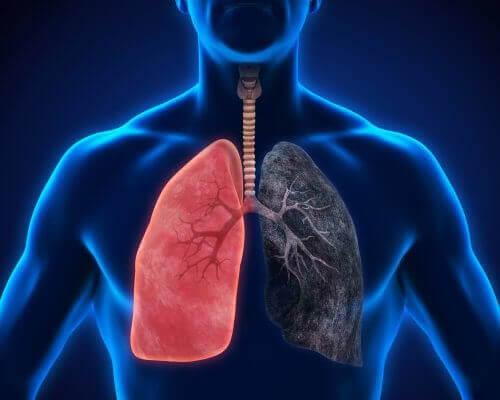 Symptomen van longontsteking die je niet mag negeren