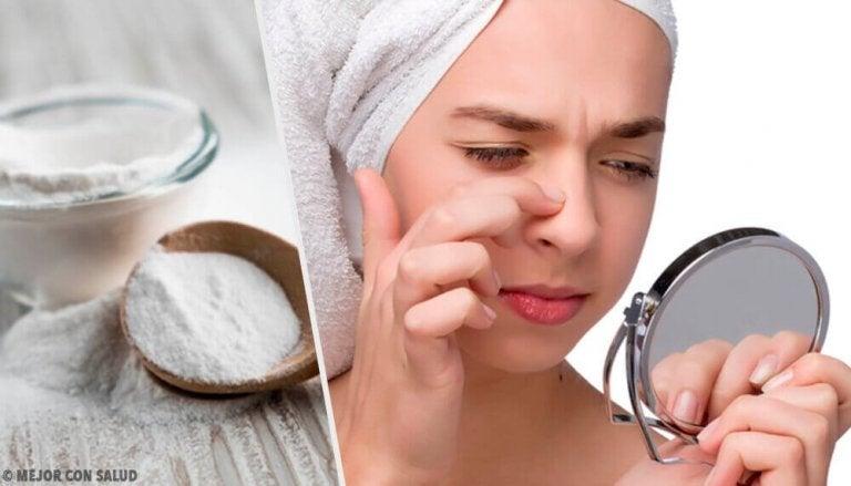 4 gezichtsmaskers met zuiveringszout voor het verwijderen van mee-eters
