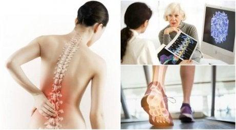 Vrouw die meer te weten krijgt over osteoporose