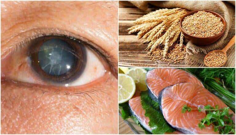 Verminder het risico op staarvorming met de volgende zeven voedingsmiddelen