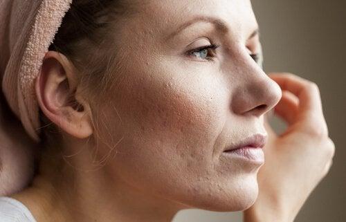 Acne, een teken dat je lichaam gifstoffen niet goed afvoert