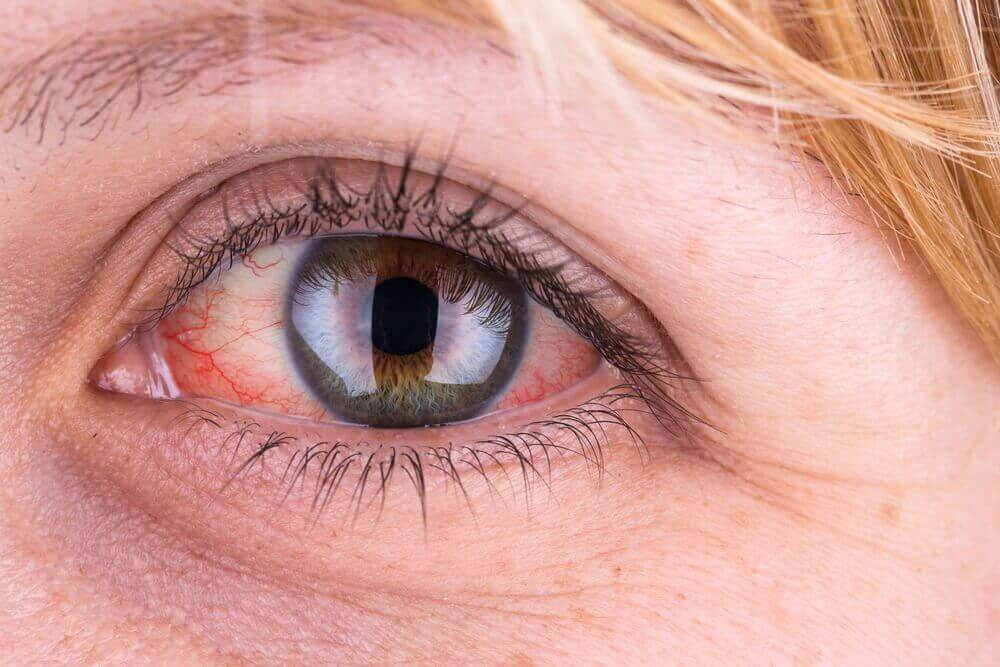 Rode ogen zijn kenmerkend voor een bindvliesontsteking