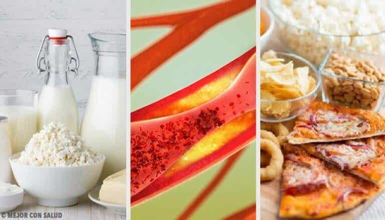 Voedingsmiddelen waardoor je slagaders verstopt raken