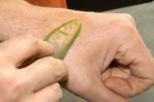 De voordelen van aloëveragel voor de huid: geneest en regenereert