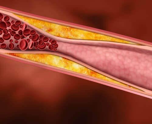 Druivensap is cholesterolverlagend