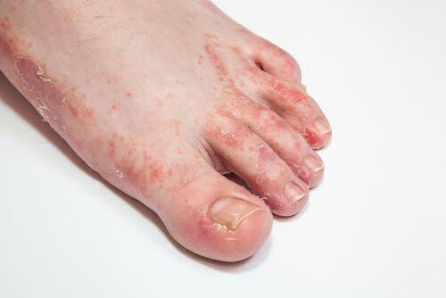 Vijftien middelen om van vervelende huidschimmel af te komen