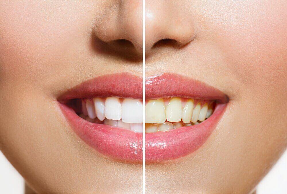 Je tanden witter maken met deze natuurlijke producten