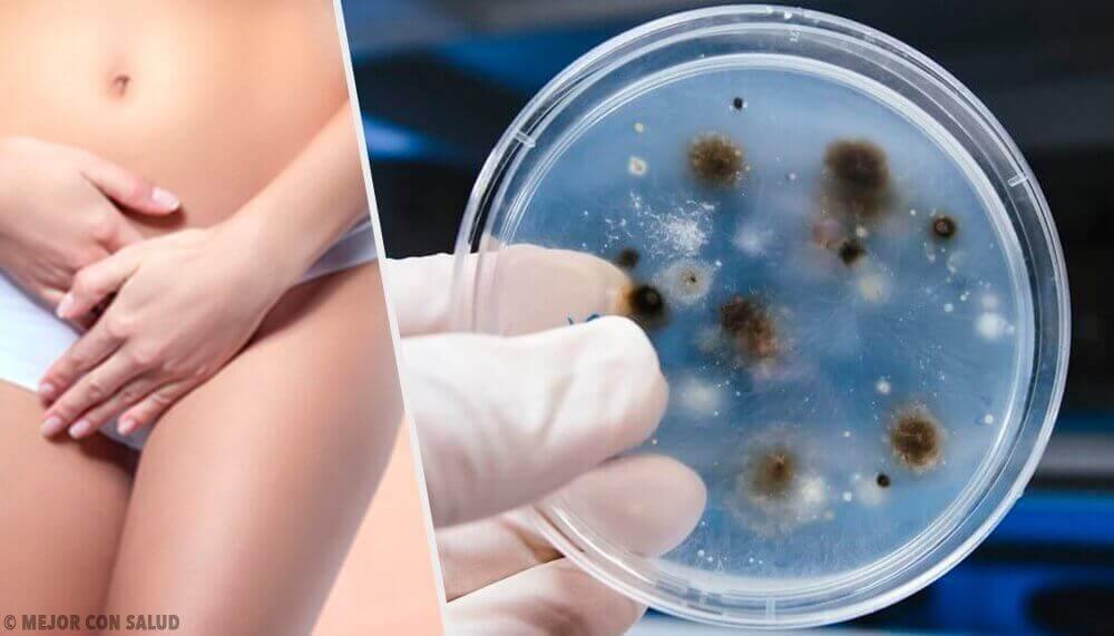 Soorten vaginale infecties en hun oorzaken