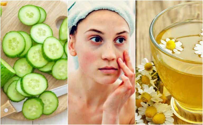 Wallen en donkere kringen verminderen met 5 natuurlijke ingrediënten