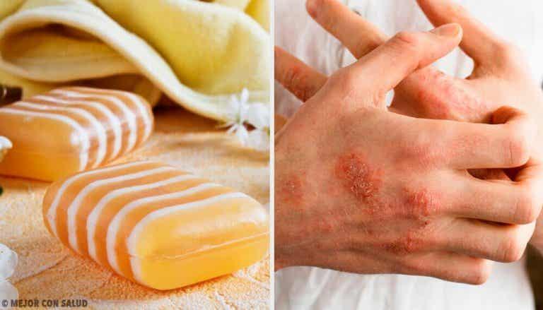 Zelf maken: zeep tegen eczeem, van glycerine, propolis en klei