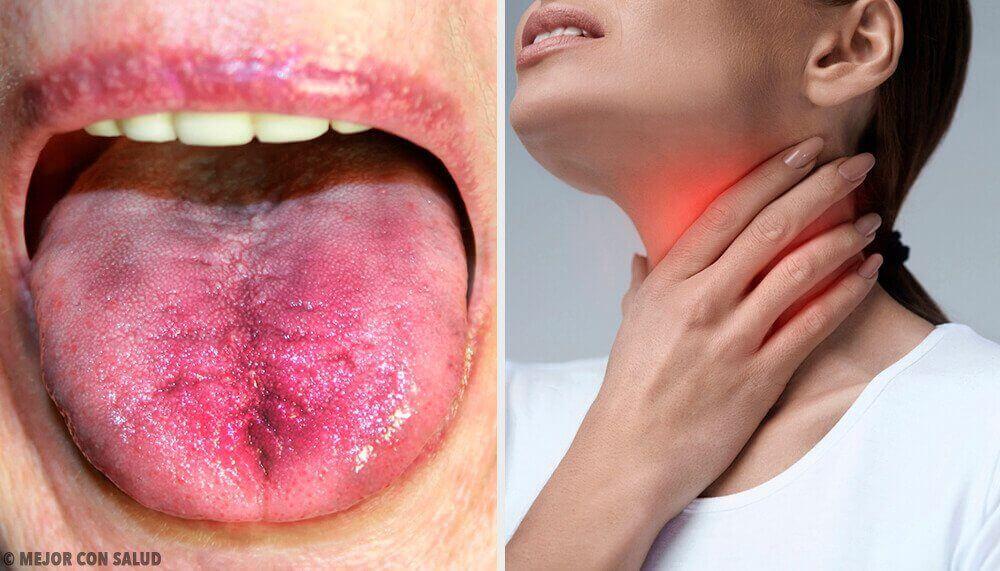 6 manieren om te weten of er witte plak in je keel zit