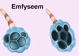 Emfyseem