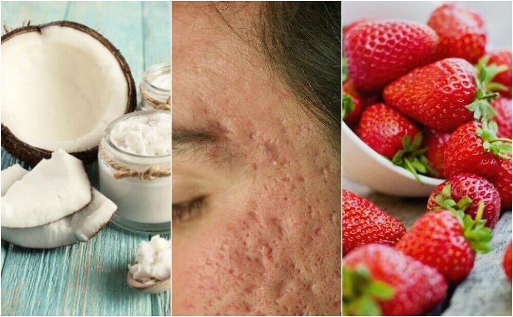 5 zelfgemaakte behandelingen om acne-littekens te verminderen