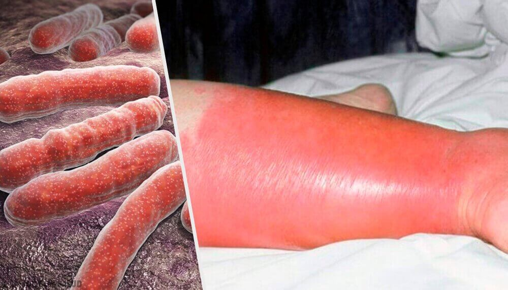 De huidinfectie wondroos: problemen en oplossingen